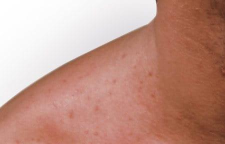 ลักษณะอาการของสิวผด (Mallorca acne)