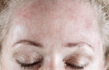 Woman´s forehead looking red and flaky