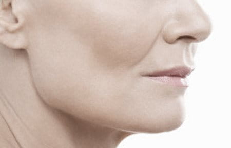Women´s mouth with nasolabial fold